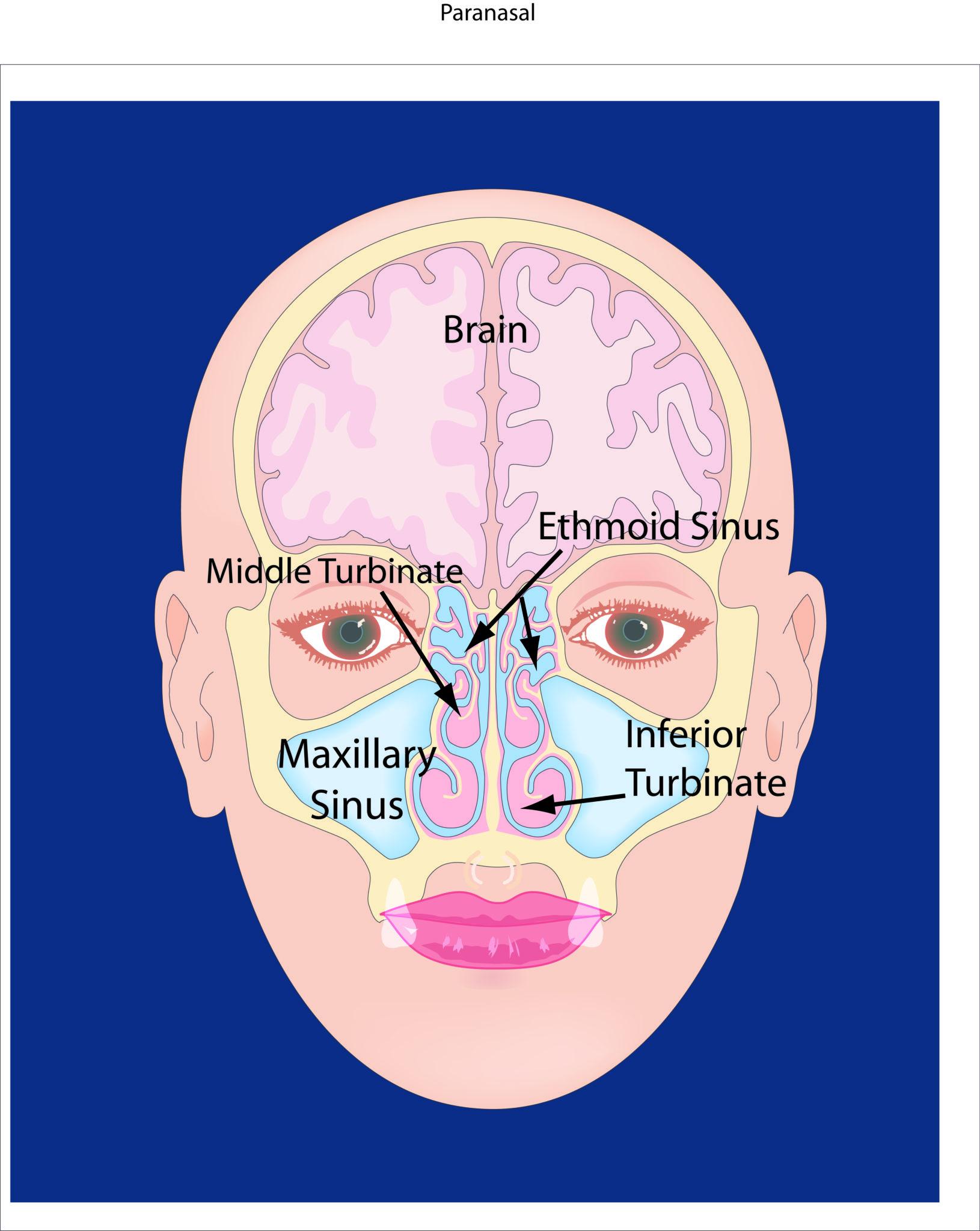 About Your Sinus Nasal Passages San Juan Pr Dr Luis Tarrats