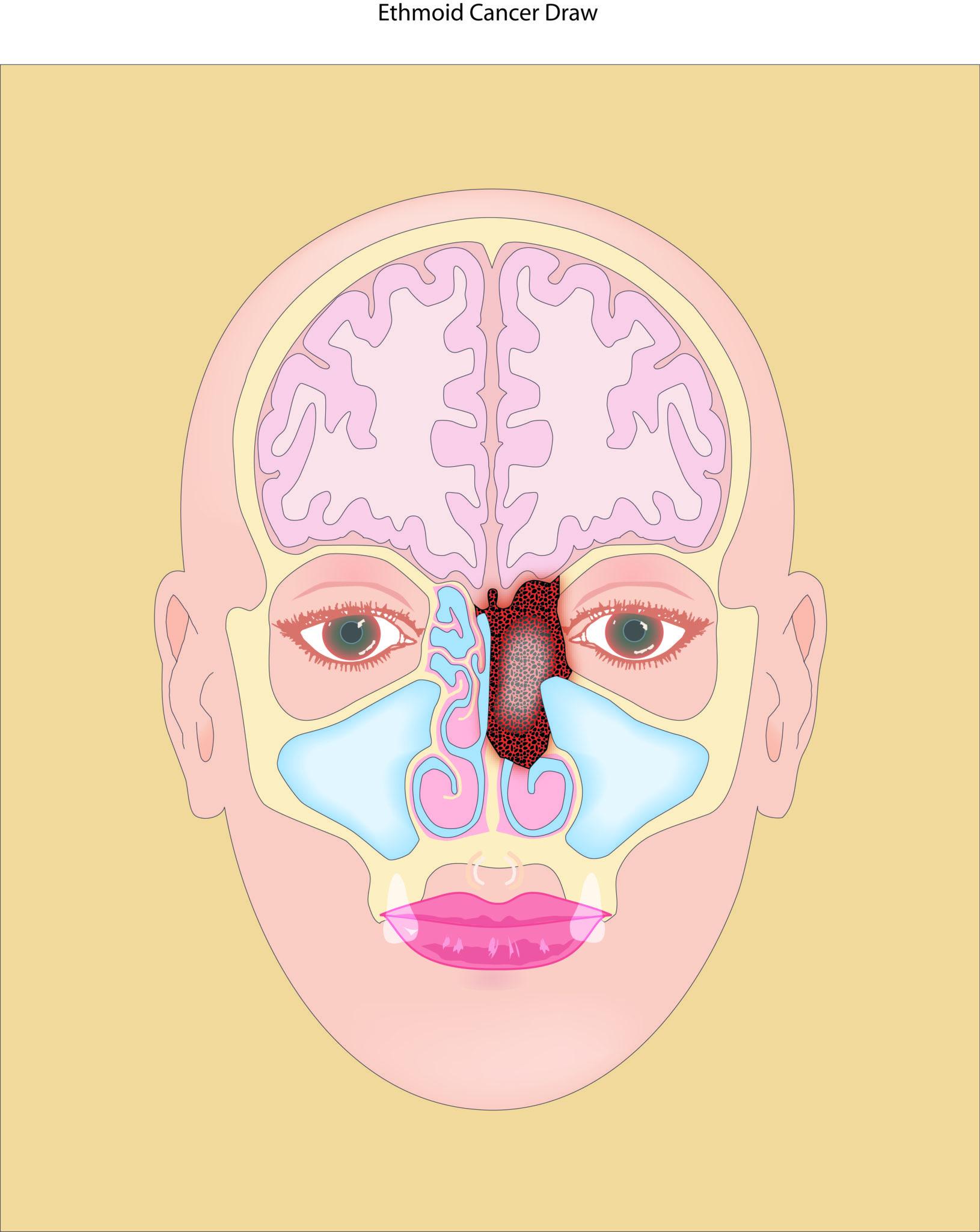 Sinus Cancer Lcr San Juan Pr Dr Luis Tarrats